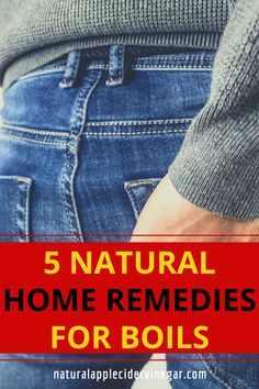 Are you looking for natural home remedies for boils. This article contains a natural remedy to relieve boils naturally. Use this natural remedy to relieve boils naturally. Check out this great recipe to naturally relieve boils naturally without using harmful ingredients that are bad for you. #relieveboilsnaturally #boilsremedy #natrualcare #homeremedy Boil Remedies, Home Remedy For Boils, Natural Home Remedies, Natural Treatments, Great Recipes, Check, Nature, Natural Remedies, Nature Illustration