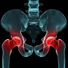 Arthritis is the most common cause of hip pain and hip replacement. Learn about the various types of arthritis, as well as the risk factors and symptoms. Fibromyalgia Pain, Chronic Pain, Chronic Illness, Endometriosis, Rheumatoid Arthritis, Corps Fort, Bursitis Hip, Hip Flexors, Health Tips