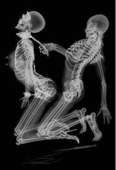 x-rays Hilariously Funny X Rays Made Ever Just For Fun - Mix Ping Crazy People, Just For Fun, Punk, Amazing Art, Beautiful Pictures, Funny Pictures, Mail Holder, Kitty, Cartoon