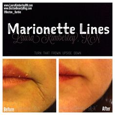 Marionette Lines make you look like your frowning! Before and After of a patient treated by Laura Kimberley, RN of Boston. Marionette Lines, Facial Fillers, Like You, Boston, Exercise, Board, Face, Ejercicio, Excercise