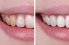 HOW TO MAKE YOUR TEETH WHITER (WITHOUT DESTROYING YOUR ENAMEL)  http://omigy.com/health/make-teeth-whiter-without-destroying-enamel/