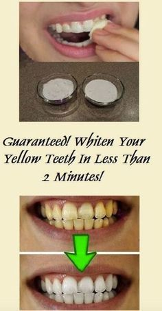 Nowadays, almost every magazine shows us ideal pictures of people with beautiful, white, and aligned teeth. But, actually, the reality is a bit different. Although Photoshop has a great hand in it,…