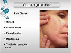 Pele Oleosa   Brilhante   Excesso de óleo   Poros dilatados   Mais espessa   Tendência a comedões  e acne  Classificação da ...