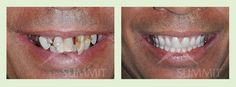 He has allowed other commitments over the years to come before his own dental health and would like to finally be able to smile again. He had immediate dentures placed and then final dentures fabricated and is able to have the smile and the function that he has desired for years.