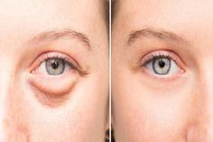 Evening Baggy Eye Solution That Removes Puffiness FAST They go by many names: bags dark circles or puffy eyes. No matter what you Dry Eyes Causes, Eye Infections, Old Makeup, Eyes Problems, Puffy Eyes, Dark Circles, Cool Eyes, Aloe Vera, Skin Care