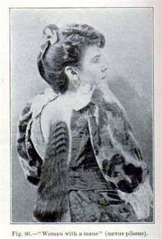 """A popular dime museum attraction from 1891 to 1895 was Bella (or Belle) Carter from Blue Bank, Kentucky, called """"The Mare Woman"""". Born normal, Bella was five years old when a mole in the center of her back began to sprout hair. Carefully cultivated, this hair grew to more than a foot in length and was as silky and shiny as the hair on Bella's head."""