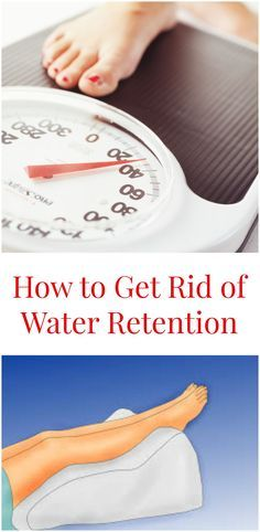 There are many natural ways of treating water retention by expelling excess water from the body and hydrating properly.