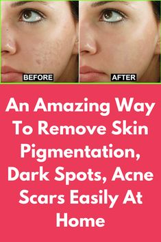 An amazing way to remove skin pigmentation, dark spots, acne scars easily at home hyperpigmentation of the skin can cause uneven color and dark patches. Dark Spots On Legs, Personal Beauty Routine, Scar Cream, Clear Skin Tips, Acne Breakout, Hormonal Changes, Ingrown Hair, Acne Scars, Skin Problems
