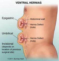 Repair adult umbilical hernia