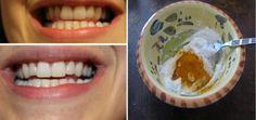 V našem dnešním článku vám proto nabídneme pár zajímavých a zároveň velmi cenných informací, jak si zkrášlit váš úsměv. Konkrétně se dozvíte, jak si vyrobit domácí zubní pastu, která dokáže zajistit následující věci: potlačit otoky a záněty dásní vybělit zuby zastavit a obnovit ustupující dásně (paradentózu) zničit škodlivé bakterie v ústech Předtím, než přejdeme k …