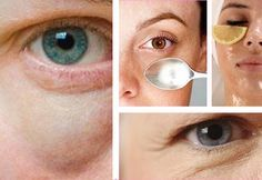 Mit verschiedenen natürlichen Mitteln kannst du Augenringe und Tränensäcke ausgezeichnet behandeln. Anschließend erfährst du mehr darüber.