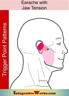 Earache with Jaw tension - Integrative Works