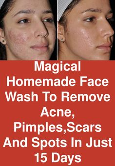 Magical homemade face wash to remove acne, pimples,scars and spots in just 15 days ingredients required : organic green tea powder neem powder tea tree Pimple Mask, Face Mask For Pimples, Pimple Scars, Acne Scars, Essential Oils Pimples, Homemade Face Wash, Oils For Scars, Pimples Remedies, Scar Remedies