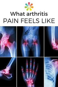 Does Arthritis Pain Feel Like? Are you wondering if the pain and stiffness in your hips, knees, or fingers are caused by arthritis? Here's how you and your doctor can decide. Psoriasis Arthritis, Juvenile Arthritis, Natural Remedies For Arthritis, Rheumatoid Arthritis Treatment, Arthritis Relief, Types Of Arthritis, Inflammatory Arthritis, Hip Arthritis Symptoms, Health Tips