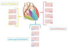 boot ecg | Understanding Heart Anatomy as it relates to the 12 Lead EKG