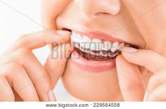 At Gill Dental, Practicing highest standards of modern dentistry e. dental implants and surgery to all residents of dentists & dental Wellington CBD. Dental Braces, Dental Implants, Dental Care, Teeth Braces, Dental Health, Gap Teeth, Oral Health, Dentist Near Me, Best Dentist