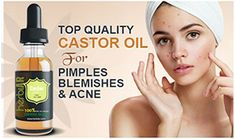 Pimple Marks, Acne Marks, Pimples, Castor Oil For Acne, Organic Castor Oil, Spot Treatment, Acne Treatment, Oils For Scars, How To Get Rid Of Acne