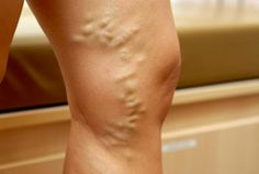 Varicose veins are quite common and seem to affect more women than men. Women dread this condition as it looks quite unsightly on bare legs. Varicose veins are Varicose Veins Causes, Varicose Vein Remedy, Operation, Bulletins, Natural Home Remedies, Natural Healing, Natural Treatments, The Cure, Cama Box