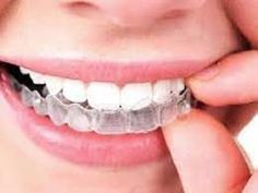 If you need braces or other orthodontic treatment like Invisalign, look no further than Ivanov Orthodontics. Our Hollywood orthodontist comes highly recommended and ready to meet all your orthodontic needs.