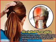 Occipital Neuralgia or Neuralgia can cause very intense pain that feels like a jabbing sharp electric shock like sensation in the back of the head and neck. Primary treatment consists of pain relievers or analgesics that may be effective in reducing t Severe Neck Pain, Trigeminal Neuralgia, Occipital Neuralgia Treatment, Neuralgia Symptoms, Chronic Migraines, Chronic Pain, Chronic Illness, Head Pain, Migraine Relief