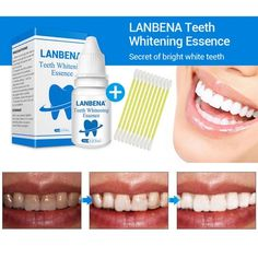 Teeth Whitening Essence 10ml Tooth Brighten Liquid With Cotton Swabs D – rtopr.cosmetic Smile Teeth, Teeth Care, Stained Teeth, Cotton Swab, Oral Hygiene, Dental Care, Teeth Whitening, Drinking Tea, Cleaning Wipes