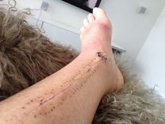 Suite a une mauvaise chute sur glace le 10 mars 2014 , voila la cicatrice apres l'operation au 13avril donc un mois apres l'operation Rofi tibia discal.