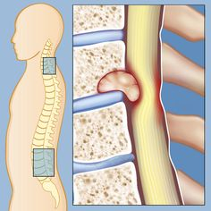 A spinal tumor is a growth of cells in or surrounding the spinal cord. A small number of spinal tumors occur in the nerves of the spinal cord itself. Spinal Tumor can affect the: Blood vessels Bones of the spine Meninges Nerve roots Spinal cord cells Herman Miller, Spinal Stenosis Treatment, What Is Stem, Severe Back Pain, Cord Blood Banking, Spine Surgery, Muscle Weakness, Spine Health, Tight Hip Flexors