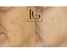 Morpheus8 and IPL *Single Treatments!! • • We love this combination treatment! Here we did our collagen stimulating Morpheus8 and our… Laser Rejuvenation, Collagen, Fish Tattoos, Collages