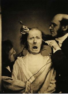 El neurólogo Duchenne de Boulogne electrocuta la cara de un hombre con el fin de estudiar los músculos faciales. Francia. 1862