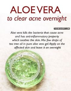 Aloe Vera To Clear Acne Overnight - 14 Proven Homemade Acne Remedies That Cure Acne Fast and On A Budget