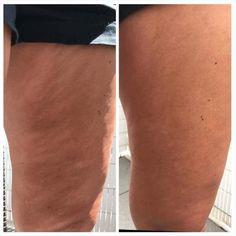 Glatte Haut nur durch cremen Anti Cellulite, Smooth Skin