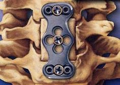Explaining Spinal Disorders: Cervical Stenosis