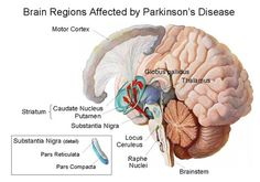 Some notes on Parkinsons disease from my Neurobiology class: -Parkinson's disease is a basal ganglia disorder  -In 1817 James Parkinson published the 1st complete description of the disease, the shaking palsy, that would be named Parkinson's  -Parkinson's disease is caused by a loss of 80-90% of Snc dopamine containing neurons -In Parkinson's disease, dopamine neurons in substantia nigra pars compacta die. Changes in basal ganglia circuit activity produced by Parkinson's disease:  1. Stri