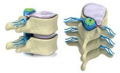 Herniated disc? Learn the best exercises to put your disc back in place and the stabilization exercises needed to prevent another herniated disc.