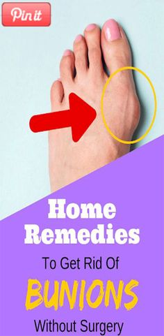 """Here we discuss about the topic that is """"Get Rid Of Bunion Without Surgery"""". A bunion is often called bony bump which is formed on the joint. Bunion Remedies, Cough Remedies, Foot Remedies, Home Remedy For Cough, Cold Home Remedies, Get Rid Of Bunions, Healthy Tips, Healthy Facts, Feet Care"""