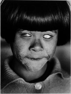 Christer Stromholm , hiroshima 1963   tragedy   disfigured young child   1960's   criminal   war   wartime   atrocity   shocking   sad   scars of life   injured civilian   gruesome   scared   poor little darling   www.republicofyou.com.au