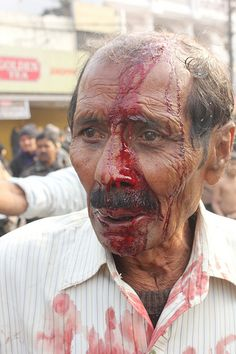 i shoot pictures of pain..save us from ourselves akka maulah hussain