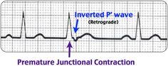 Premature Junctional Contraction Rosh Review