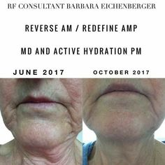 Do you wish you could go.back in time and have younger looking skin again? The derma roller from Rodan and Fields, also known as AMP MD roller, will remove deep wrinkles from you face! Say goodbye to wrinkles around your mouth, forehead, cheeks, and neck! Click to order the AMP MD system and save 10% as a Preferred Customer!  Anti-aging   skincare routine   Better than Botox   Botox Alternative   How to remove wrinkles   #rodanandfields #lookgoodfeelgood