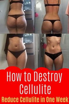 Can you get rid of cellulite once you have it? Is there an optimal way to reduce cellulite in one week or push even beyond that to find out how to get rid of cellulite in 2 weeks?