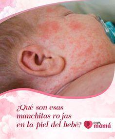 ¿Qué son esas #manchitas rojas en la #piel del bebé?   En ocasiones los #bebés tienden a sufrir de los mismos #problemas. Por ejemplo, las manchitas #rojas en la piel son comunes en muchos casos