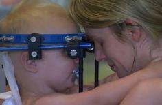 Médicos conseguem reconectar cabeça de bebê após acidente