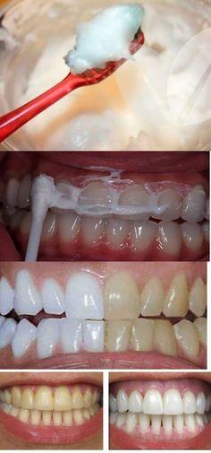 EM 15 MINUTOS, VOCÊ VAI CLAREAR SEUS DENTES EM CASA – TOTALMENTE NATURAL! #clareardentes #dentes #clareamento #dicas #dicascaseiras