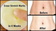 I couldn't wear saree because my stretch marks, but this cream erased all of them in just 4 weeks like a magic  Aloe Vera Gel (1 tbsp) + Lemon Gel or Juice (1 tbsp) + Castor Oil (1 tsp) + Vitamin E Capsule (1)  Preparation and use  In a clean bowl add 1 tbsp aloe vera gel Add all other ingredients into this Mix them very well Your cream is ready, store this in clean container You can store it for 1 month Clean your area with wet towel.....
