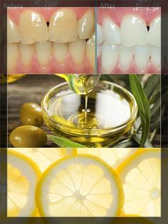 Prevent Tooth Decay, Protect Your Enamel, And Make Your Teeth White And Strong Only With One Ingredient | Home Remedies