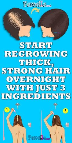 Loss of hair might be uncommon if you are losing greater than 100 hairs a day. This might cause a general thinning of hair or in an uneven hair loss over the scalp. Hair Remedies For Growth, Hair Growth Treatment, Hair Loss Remedies, Nail Treatment, Thinning Hair Remedies, Normal Hair Loss, Oil For Hair Loss, Reverse Hair Loss, Stop Hair Loss