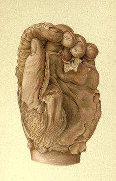 Black Hands - biomedicalephemera: Top: Hand of a day-laborer...