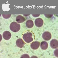 Red blood cell shape like Apple´s logo