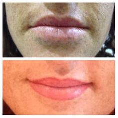 Full Lip Blend - by Natalie #cosmetictattoo #permanentmakeup #beauty #goldcoast #salon