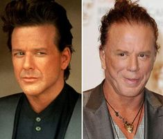 Mickey Rourke Plastic Surgery : The Evolution Of Mickey Rourke Before And After Plastic Surgery. The evolution of mickey rourke before and after plastic surgery. Botched Plastic Surgery, Bad Plastic Surgeries, Plastic Surgery Gone Wrong, Mickey Rourke Plastic Surgery, Tear Trough, Celebrities Before And After, Young Celebrities, Celebrity Plastic Surgery, Bruce Jenner